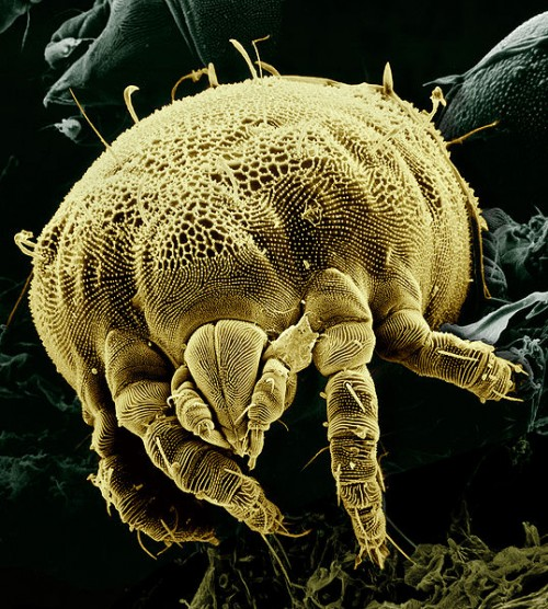 microscopy e1292164295736 Yellow Mite